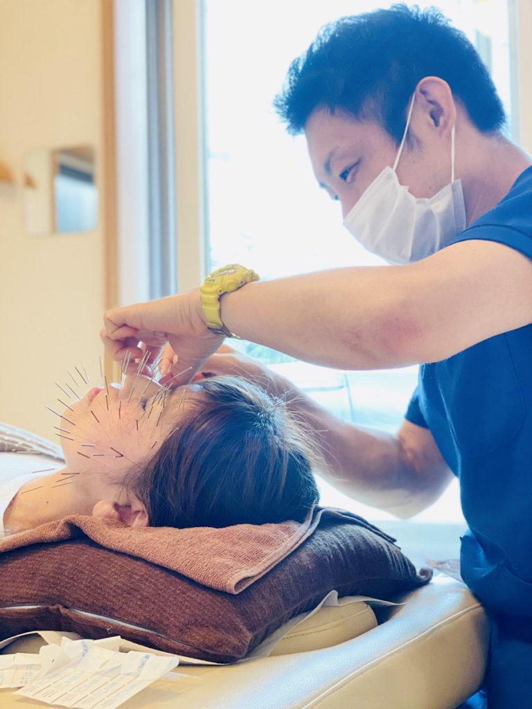 なかざわ鍼灸整骨院 美容鍼(深層筋美容鍼)施術中
